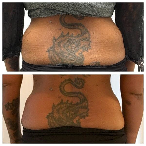Före och efter behandling med fettfrysning