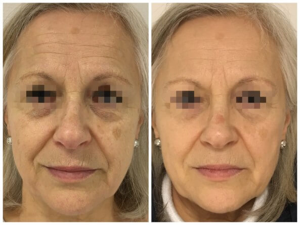 Före och efter behandling med Fotona 4D